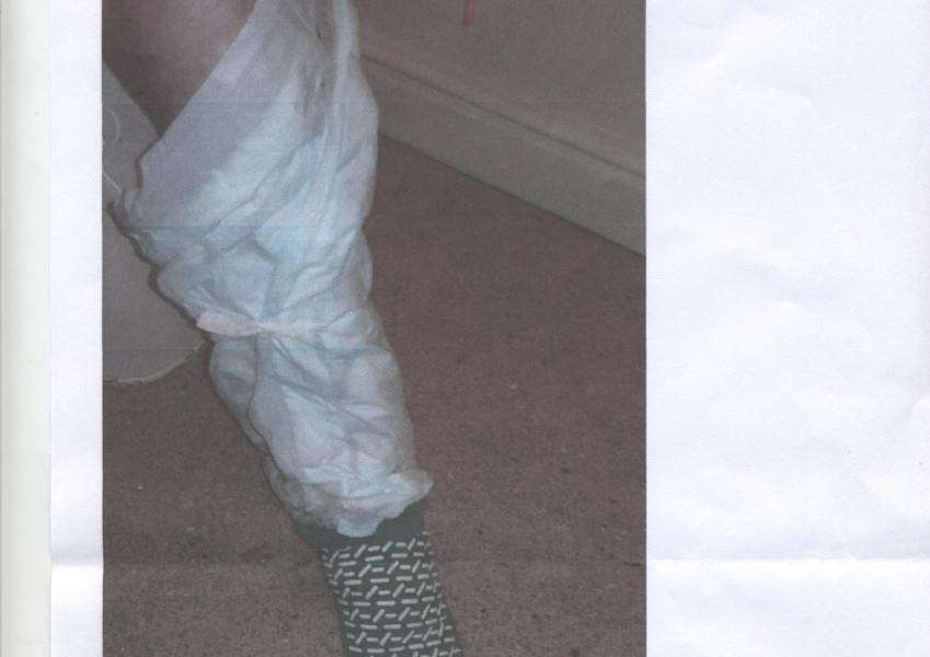 Incontinence pads were wrapped around the leg of 93-year-old Gwendoline Johnson when she was discharged from Lincoln Hospital.